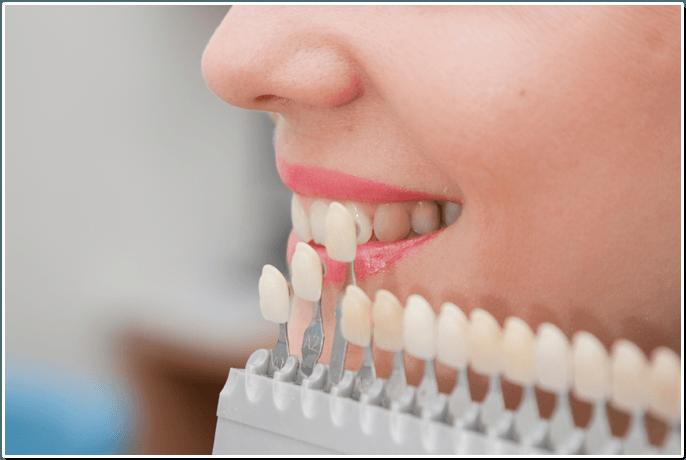 Зубные протезы в Воронеже