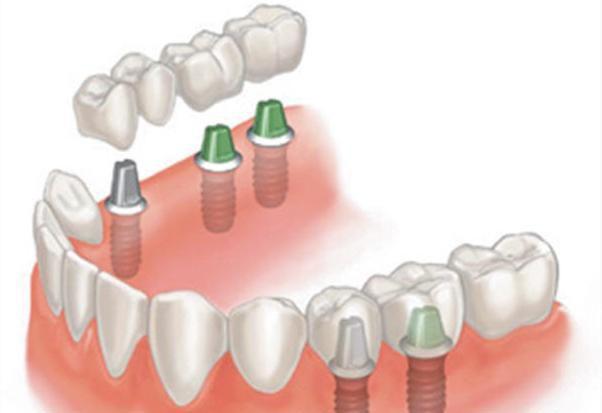 имплантация при любом состоянии зуба