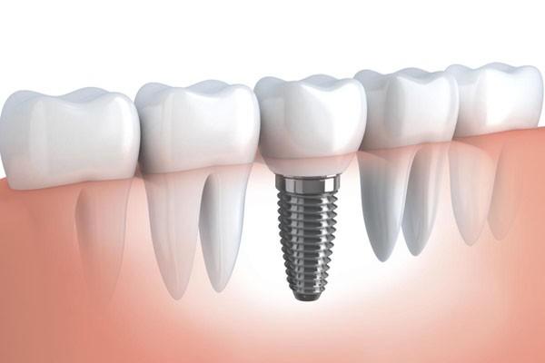 любая имплантация зубов