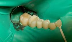 реставрация зубов в воронеже запись