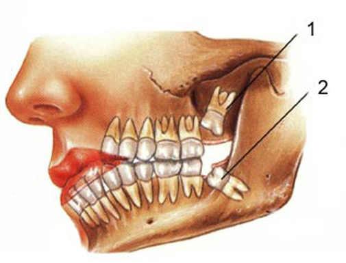Зубы мудрости