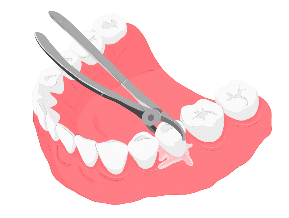 сложное удаление зуба Воронеж