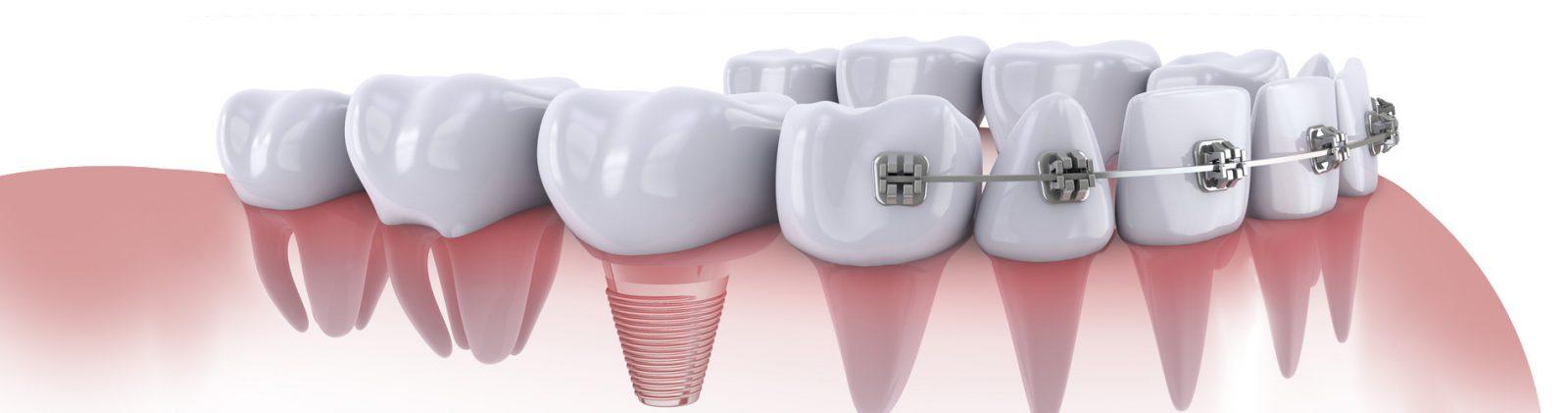 Ортодонтия в Воронеже
