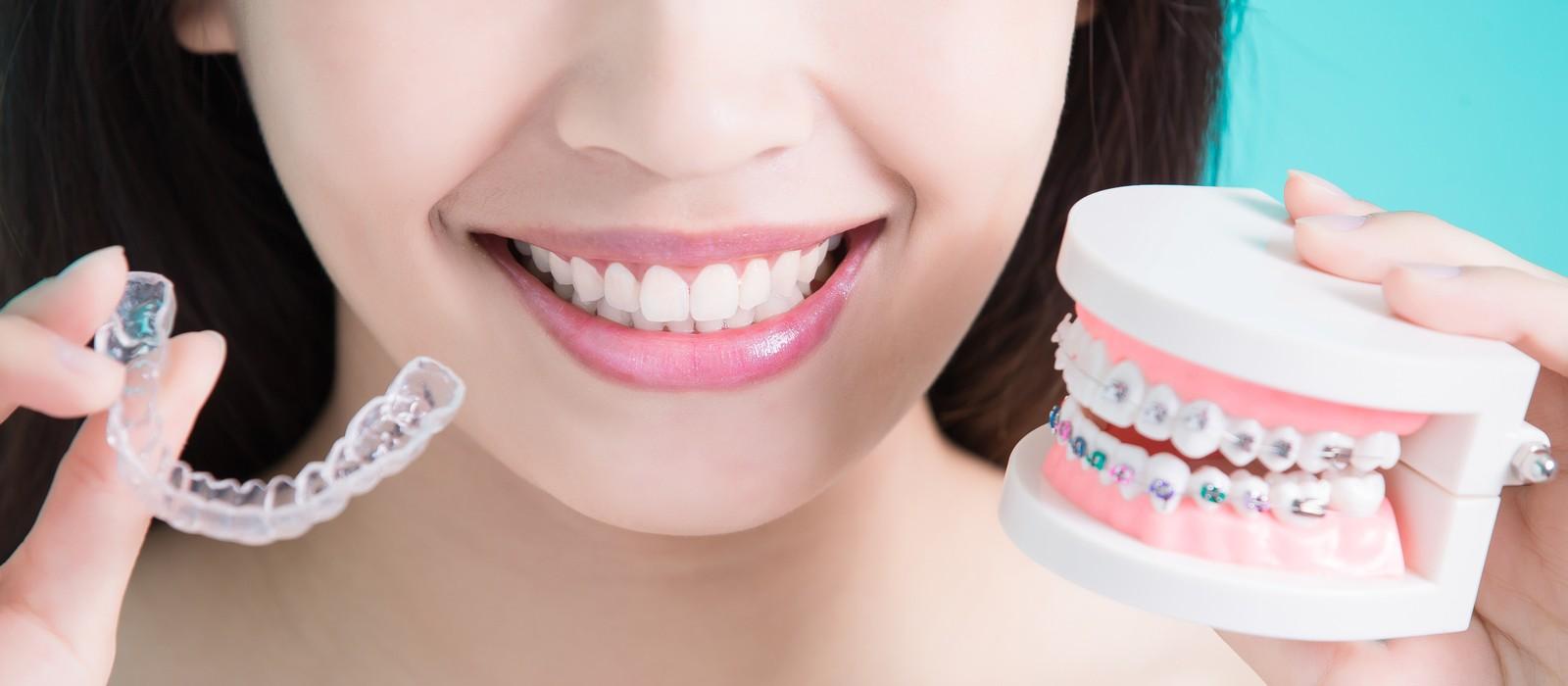 Ортодонтия в Воронеже: качественное исправление прикуса – ПломбирЪ